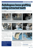Autologous bone grafting using extraded teeth
